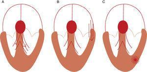 Mecanismos para taquicardia de QRS largos. A – TSV com bloqueio de ramo; B – TSV com condução AV por via acessória; C – TV (Fonte: Wellens2).