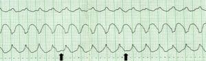 Taquicardia de QRS largos, em que existe evidência de dissociação AV (ondas P representadas pelas setas), que é indicativa da origem ventricular.