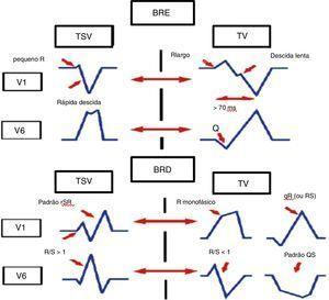 Critérios morfológicos nas derivações V1 e V6 para diferenciação de taquicardia de QRS largos.