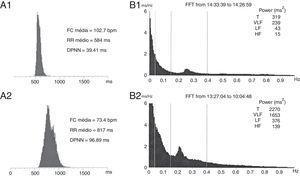 A) Histograma dos intervalos RR de ECG de Holter 24 horas: A1) inicial e A2) pós‐cirurgia. B) Variabilidade da FC no domínio da frequência: B1) inicial e B2) pós‐cirurgia. DPNN: desvio‐padrão dos intervalos RR normais. Verifica‐se um aumento do DPNN de 39ms para 97ms entre os dois exames. Verifica‐se ainda que previamente à cirurgia havia uma quase abolição com componente de HF (HF=15ms2) e da LF (LF=43 ms2). Após a cirurgia registou‐se uma recuperação do componente de HF (HF=139 ms2) e da LF (LF=376ms2).