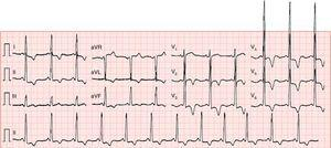 ECG showing sinus rhythm (66 bpm), increased QRS voltage and diffuse, deep, symmetric T-wave inversion.