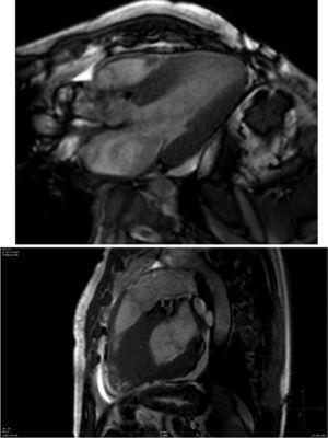 Cardiovascular magnetic resonance showing concentric left ventricular hypertrophy and increased right ventricular free wall thickness, with decreased left ventricular volume.