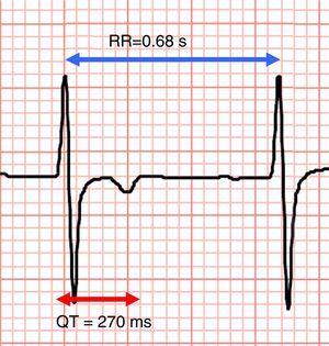 Electrocardiographic recording, lead V2, showing shortened QT interval (270 ms) with RR interval of 0.68 s. The <span class=