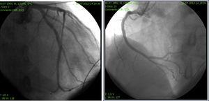 Coronary angiography of the left and right coronary circulation showed no significant disease.