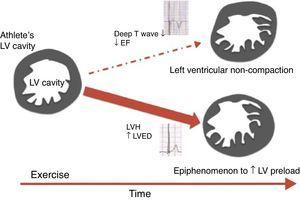 Scheme proposed for the significance of left ventricular trabeculation in athletes (adapted from 58). EF: ejection fraction; LV: left ventricular; LVED: left ventricular end-diastolic diameter; LVH: left ventricular hypertrophy.