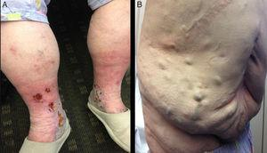 (A) Clinical presentation in a patient with IVC syndrome of venous stasis with bilateral telangiectasias, reticular and varicose veins, edema, skin pigmentation and chronic lipodermatosclerosis; (B) prominent dilated abdominal veins.