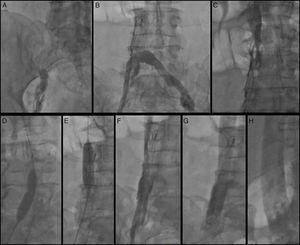 (A) Right femoral venogram; (B) left femoral venogram through Quick-Cross catheter demonstrating IVC interruption at the level of the IVC filter; (C) selective IVC venogram through Quick-Cross catheter above the IVC filter showing IVC stenosis; (D and E) balloon angioplasty of the IVC and right femoral vein through the IVC filter; (F) angiogram after percutaneous balloon angioplasty; (G and H) angiogram after stent placement.