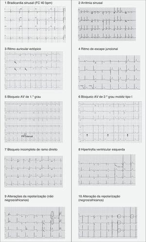 Padrões eletrocardiográficos associados ao «coração de atleta».