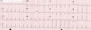 Eletrocardiograma: taquicardia sinusal, infradesnivelamento ST em V4 e V5.