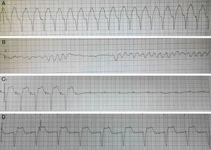 Representative ECGs (lead II) of various arrhythmias and of pacemaker recorded by the ECG monitor during hospitalization. (A) Ventricular tachycardia; (B) ventricular fibrillation; (C) high-degree atrioventricular block; (D) ventricular pacing by temporary pacemaker.