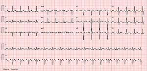 ECG de 12 derivações – FLA atípico, 101bpm (ondas de flutter positivas nas derivações inferiores e v1).