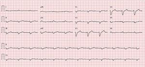 ECG: RS, 67/min, bloqueio auriculoventricular do 1.° grau, baixa voltagem nas derivações frontais e bloqueio completo de ramo esquerdo.