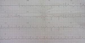 Normal ECG.