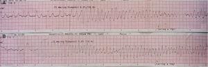 Polymorphic ventricular tachycardia (PVT) triggered by ventricular pacing (A); short-coupled (290 ms) PVT (B).