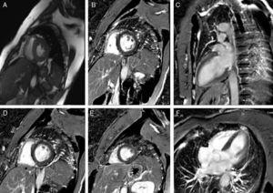 Cardiac magnetic resonance imaging: cine steady-state free precession (A) and late enhancement images, in short axis (A, B, D, E), 2-chamber (C) and 4-chamber (F) views.