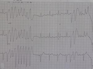Short-coupled interval (280 ms) nonsustained polymorphic ventricular tachycardia.