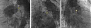 Fluoroscopy during percutaneous patent ductus arteriosus closure: left, a continuous flow can be seen from the aorta to the pulmonary artery (yellow arrow); center, during device placement (yellow arrow); right, after the procedure the device is properly positioned with no residual shunt (yellow arrow).