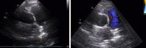 Transthoracic echocardiogram after patent ductus arteriosus closure (parasternal short-axis view): left, an image consistent with the closure device (yellow arrow); right, on color Doppler the turbulent flow is no longer seen.