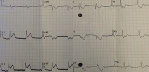 Eletrocardiograma após início dos sintomas.