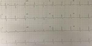 Eletrocardiograma após coronariografia.