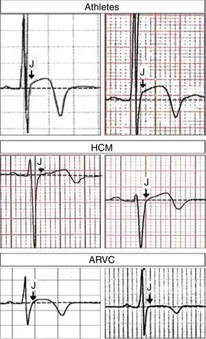 Derivação V3 aumentada em diferentes condições clínicas. Cima: notar a elevação do ponto J antecedendo a inversão da onda T (ambos os painéis de atletas saudáveis). Meio: notar a elevação do segmento ST (sem elevação do ponto J) antecedendo a inversão da onda T (ambos os painéis de doentes com miocardiopatia hipertrófica). Em baixo: notar a ausência de elevação do ponto J antecedendo a inversão da onda T (ambos os painéis de doentes com displasia arritmogénica do ventrículo direito). Setas indicam «ponto J». Adaptado de Calore et al.11.