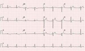 Resting electrocardiogram exhibiting sinus rhythm (60 bpm) and nonspecific repolarization changes.