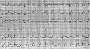 Electrocardiogram showing ST-segment elevation in leads I, aVL, and V2-6 consistent with acute anterior/lateral ST-segment elevation myocardial infarction.