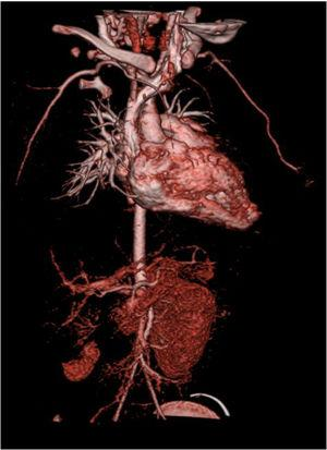 Angiotomografia computorizada que mostra vascularização apenas polo inferior rim direito.