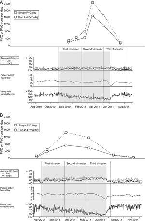 PVC, PVC series, HR, daily activity (hours) and HRV (SDNN) throughout the entire course of pregnancy as retrieved from the ICD memory in patient A (panel A) and patient B (panel B). The number of PVCs is shown at the midpoint between two close clinical evaluations and ICD follow-up visits. PVC, premature ventricular contraction; HR, heart rate; HRV, heart rate variability; SDNN, standard deviation of normal-to-normal RR intervals.