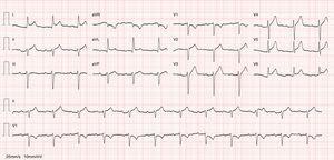 ECG de 12 derivações. Ritmo sinusal com elevação do segmento ST e esboço de infra do segmento PR.