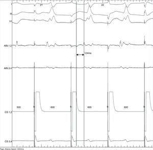 Pacing auricular no seio coronário com sinal de duplo potencial ≥ 100 mseg. A confirmação de duplo potencial foi feita ao longo de todo o istmo cavotricúspide. CS, cateter quadripolar localizado no seio coronário, ABL, cateter de ablação.