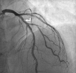 Angiografia coronária com lesão de 30% no segmento médio da DA (seta branca). Observa‐se ainda artéria circunflexa (Cx) que apresenta estenose ostial de 50%, lesão de 70‐90% na bifurcação para a saída da primeira obtusa marginal (OM1), e ainda lesão de 70‐90% num ramo intermediário.