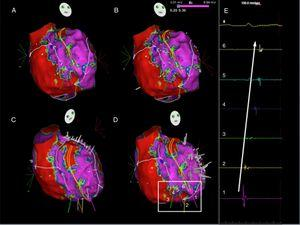 Ripple map of the second flutter, displayed over a bipolar voltage map: the wavefront ascended between the crista terminalis and the intercaval line, went around the right atrial appendage and descended anteriorly to the crista terminalis (A to D) through the slow conducting isthmus. As the isthmus is a cicatricial zone, the Ripple bars are smaller in number and in amplitude. As such, six Ripple marks and corresponding electrograms are displayed and marked (D and E). The slow conduction through the critical isthmus began at mark 1 and spread to mark 6.