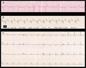 Electrocardiograms: A) Third-degree atrioventricular block during advanced cardiopulmonary resuscitation. B) Pacemaker-stimulated ventricular rhythm with atrioventricular dissociation. C) Sinus rhythm with normal atrioventricular conduction and narrow QRS.
