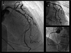Coronary angiogram: A) Left anterior descending artery with diffuse atherosclerosis but no apparent severe obstructive lesions. B) Left coronary artery, circumflex artery branches and left anterior descending artery from another point of view. C) Right coronary artery.