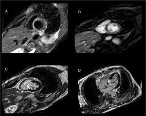 Cardiac magnetic resonance: A) Increased short inversion time inversion recovery signal intensity, indicating septal edema. B) Subendocardial perfusion defect in the same area. C and D) Transmural delayed enhancement at the same level with no viability, confirming the diagnosis of acute septal myocardial infarction.