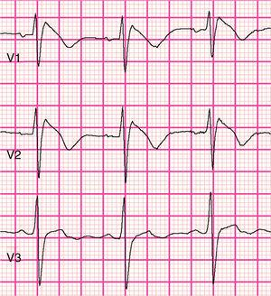 Type 1 (coved-type) Brugada syndrome electrocardiogram present in V1 and V2 (courtesy of Prof. P.G. Postema and ECGpedia.org).