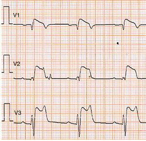 Type 1 Brugada phenocopy electrocardiogram in V1-V2 and type 2 Brugada phenocopy electrocardiogram in V3, in the context of hyperkalemia. Retrieved from Dendramis et al.78.