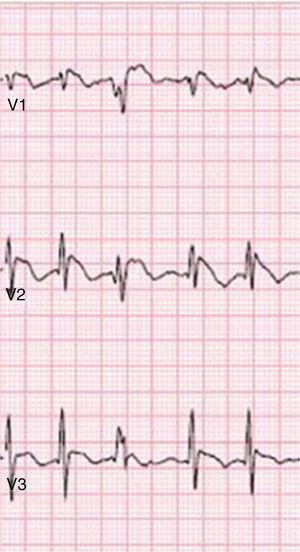 Type 1 Brugada phenocopy electrocardiogram in V1-V3, in the context of hypophosphatemia. Retrieved from Meloche et al.80.