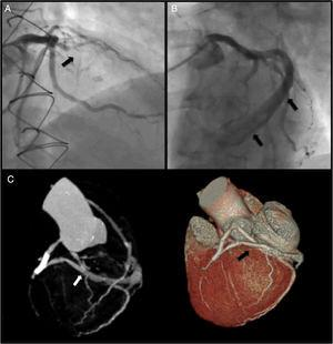 Panel A: coronary angiography (right cranial view) showing LAD occlusion; Panel B: large caliper vessel uncovered after LAD balloon pre-dilatation (left cranial view); Panel C: documentation of a fistula from the middle segment of the LAD into the coronary sinus by CT angiography.