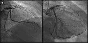 Coronary angiography (Panel A: right cranial view&#59; Panel B: right caudal view) showing LAD occlusion prior to the CABG.