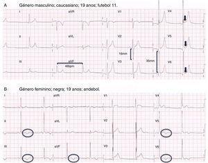 Exemplo de dois ECG incluídos no formulário do estudo: Figura 1A – traçado com alterações fisiológicas (bradicardia sinusal, critérios isolados para hipertrofia ventricular esquerda e repolarização precoce); Figura 1B – traçado com alterações patológicas (ondas T negativas em todas as derivações inferiores e em V5‐V6), num atleta com o diagnóstico de miocardiopatia hipertrófica.
