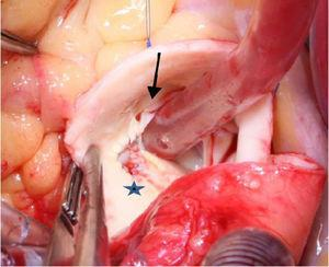 Fenestration of the anomalous left coronary artery (LCA), with creation of a neo-ostium (blue star). Note the small, slit-like anomalous opening of the LCA in the right sinus (black arrow).