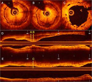 Optical coherence tomography. (A–B) Severe restenosis due to neoatherosclerosis. (C) Excellent outcome after sirolimus-eluting balloon. (D) Longitudinal view before treatment. (E) Longitudinal view after treatment. (*: wire artefact).