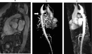 Coarctation of the aorta (white arrow) in a 24-year-old TS woman in different projections: (a) sagittal-oblique cine magnetic resonance image, (b) volume-rendered magnetic resonance aortography (posterior-oblique view), (c) magnetic resonance aortography maximum intensity projection (sagittal-oblique view).