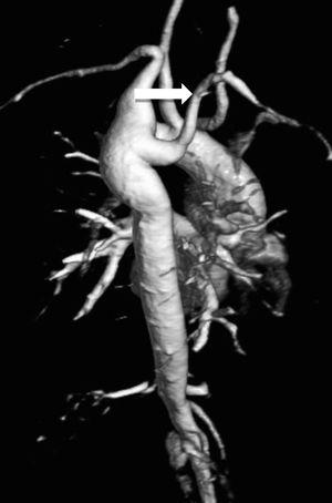 Volume-rendered magnetic resonance aortography (posterior-oblique view) showing an aberrant right subclavian artery (white arrow) in a 37-year-old TS woman.