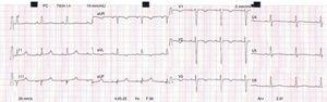 Electrocardiogram: sinus rhythm and inversion of the T waves in leads aVL and V1-V3.
