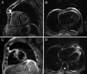 Cardiac magnetic resonance: delayed enhancement sequence showing diffuse intramyocardial enhancement of both ventricles, suggesting presence of fibrosis.