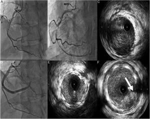 A e B: Coronariografia evidenciando artéria coronária direita (CD) com disseção espontânea desde o segmento médio com trombo condicionando fluxo TIMI 1. C: Imagem de IVUS mostrando disseção desde o ramo póstero‐lateral até ao segmento médio da CD com grande quantidade de trombo. D: Implantação de três stents com fármaco em overlap. E e F: Imagem de IVUS mostrando stents com boa expansão e aposição e protrusão de trombo (seta).