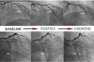 Coronary angiography at baseline, post-percutaneous intervention with implantation of Magmaris devices, and follow-up at three months. CX: circumflex; LAD: left anterior descending.